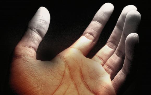 beyaz parmak hastaligi norton